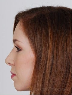 25-34 year old woman treated with Rhinoplasty after 3259271