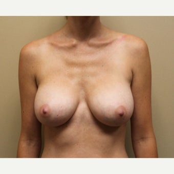 25-34 year old woman treated with Breast Implant Revision after 1651238