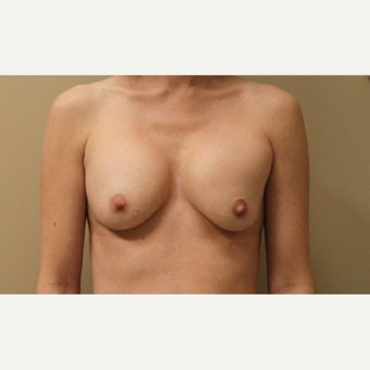 25-34 year old woman treated with Breast Implant Revision before 1651238