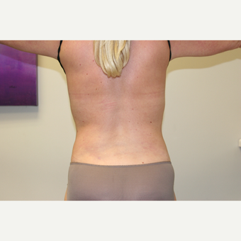 45-54 year old woman treated with Vaser Liposuction after 2998749