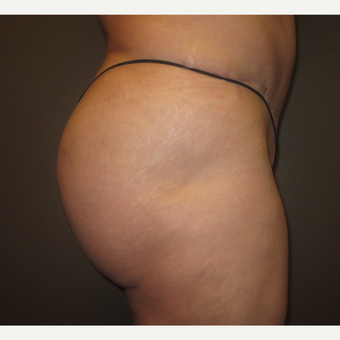 45-54 year old woman treated with Brazilian Butt Lift after 3241352