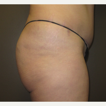 45-54 year old woman treated with Brazilian Butt Lift before 3241352