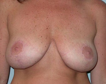 Breast Lift Procedure for 38 Year Old Woman  after 876610