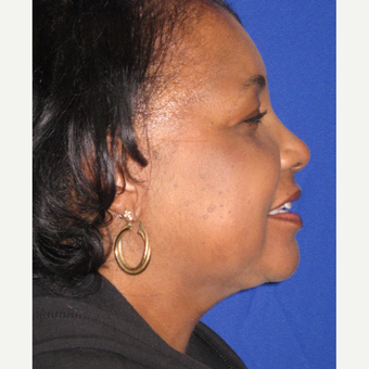 Neck Liposuction after 3802142