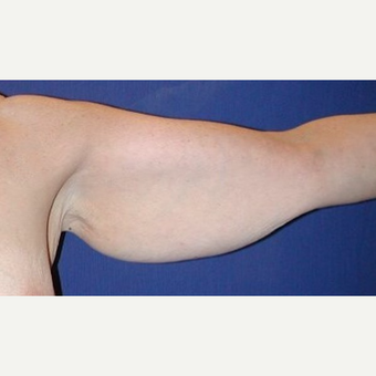 45-54 year old woman treated with Arm Lift before 2979263