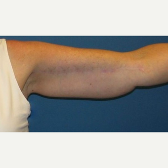 45-54 year old woman treated with Arm Lift after 2979263