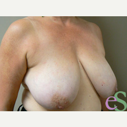 Breast Reduction before 3373570