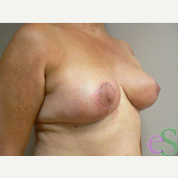 Breast Reduction after 3373570