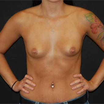 18-24 year old woman treated with Breast Augmentation before 3710694