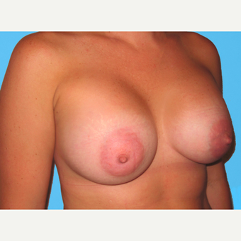 Breast Augmentation after 3732507