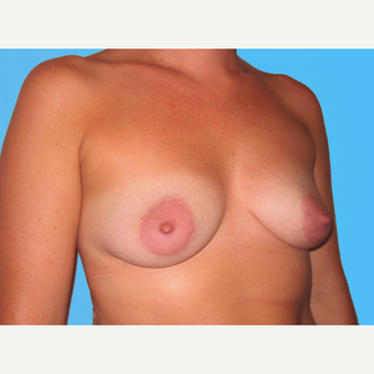 Breast Augmentation before 3732507
