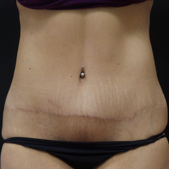 Tummy Tuck after 3014876