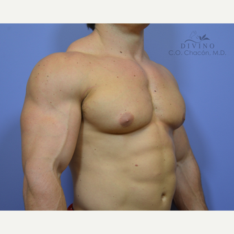 25-34 year old man treated with Male Breast Reduction after 3391756