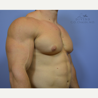 25-34 year old man treated with Male Breast Reduction before 3391756