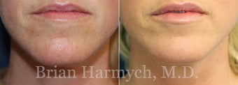 48 year-old female treated with Lip Augmentation with Restylane before 3441317