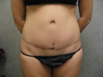 Tummy Tuck Revision before 934930