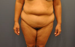 Hourglass Tummy Tuck by Dr. Wilberto Cortes before 668514