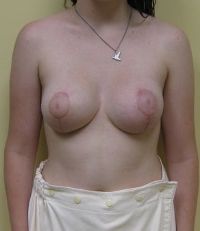 Tuberous breast deformity after 1111922