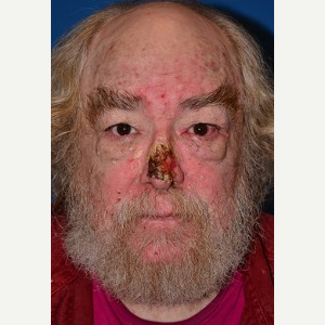 55-64 year old man treated with Mohs Surgery before 3389239