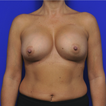 51 year old woman treated with Breast Augmentation after 3345117