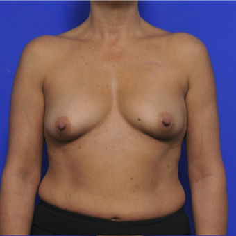 51 year old woman treated with Breast Augmentation before 3345117