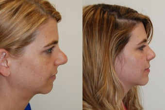 Revision Rhinoplasty Surgery. 8 months post-op. before 930154