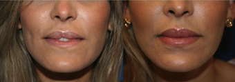 Lip augmentation female before 1114499