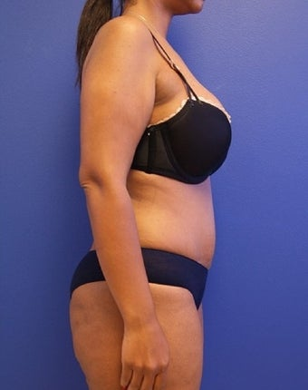35-44 year old woman treated with Tummy Tuck 2554190