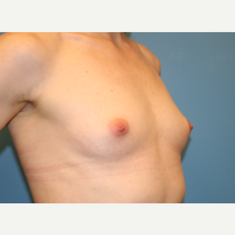 29 year old woman treated with Breast Augmentation before 3486696