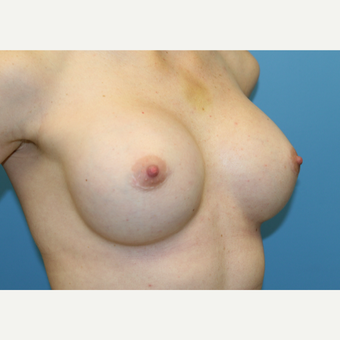 29 year old woman treated with Breast Augmentation after 3486696