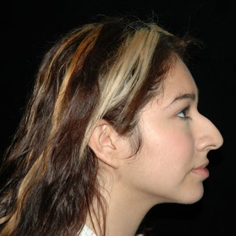 18-24 year old woman treated with Nose Surgery before 1726896