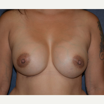 35-44 year old woman treated with Breast Implants after 3455176