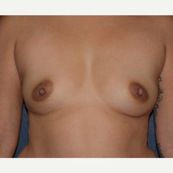 35-44 year old woman treated with Breast Implants before 3455176