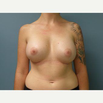 35-44 year old woman treated with Breast Augmentation after 3035188