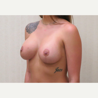 18-24 year old woman treated with Breast Lift with Implants after 3495372
