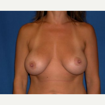 35-44 year old woman treated with Breast Augmentation after 3009171