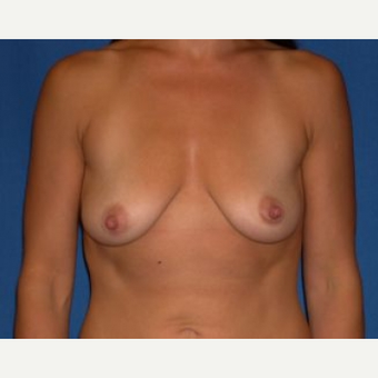 35-44 year old woman treated with Breast Augmentation before 3009171