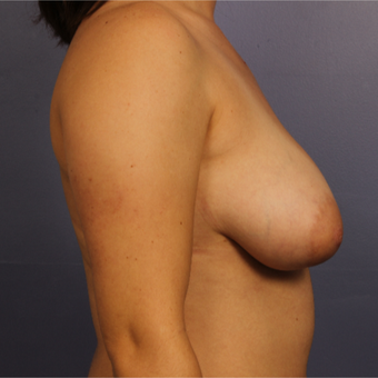 Breast Lift before 3671700
