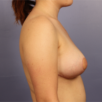 Breast Lift after 3671700