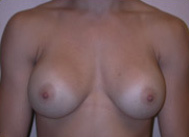 Breast Augmentation with Silicone Gel Implants before 1398150
