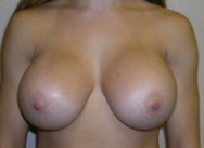 Breast Augmentation with Silicone Gel Implants after 1398150