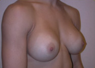 Breast Augmentation with Silicone Gel Implants 1398150