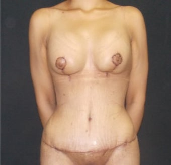 25-34 year old woman treated with Mommy Makeover after 3499316