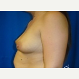 18-24 year old woman treated with Breast Augmentation before 3143436