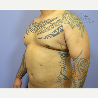 35-44 year old man treated with Male Breast Reduction after 3421536
