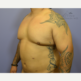 35-44 year old man treated with Male Breast Reduction before 3421536