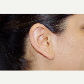35-44 year old woman treated with Ear Lobe Surgery before 3055252