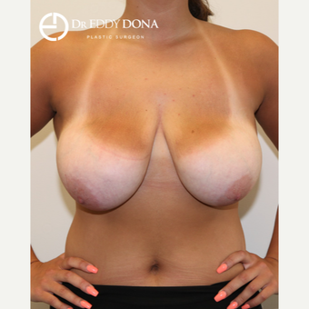 18-24 year old woman treated with Breast Reduction before 2967848