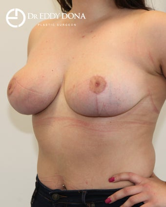 18-24 year old woman treated with Breast Reduction 2967848