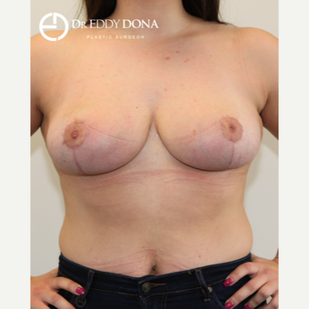 18-24 year old woman treated with Breast Reduction after 2967848